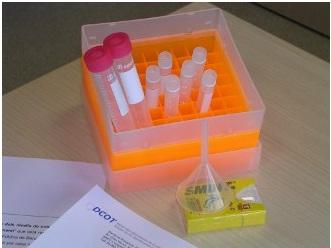Validació de nous Biomarcadors per al Diagnòstic Precoç del Càncer Colorrectal